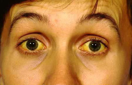 Желтые глазные белки