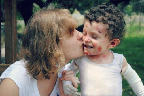 Забота о ребенке с синдромом бвбочки