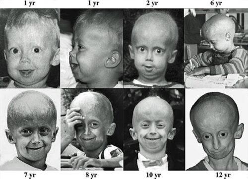 Детская прогерия
