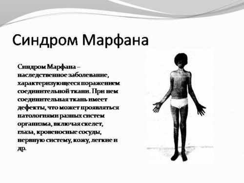 Синдром Марфана описание