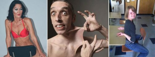 Люди с синдромом Элерса-Данлоса