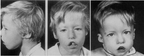 Фото ребенка с синдромом Ди Джорджи