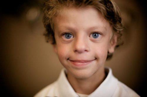 """Мальчик с синдромом """"лица эльфа"""""""
