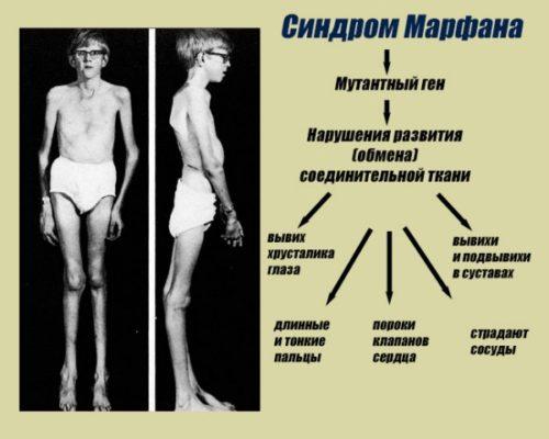 Симптомы синдрома Марфана