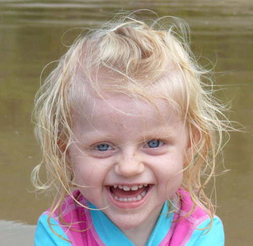 Ребенок с синдромом Ангельмана