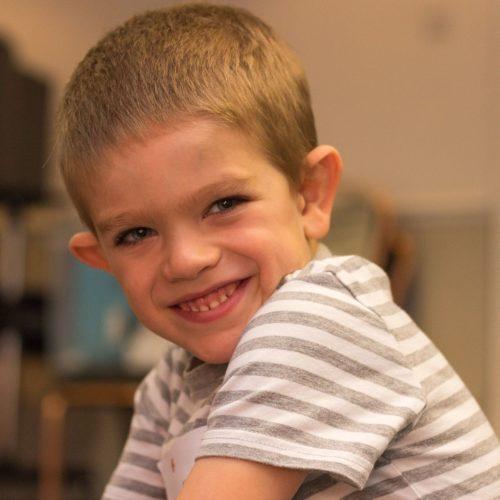Фото ребенка с синдромом