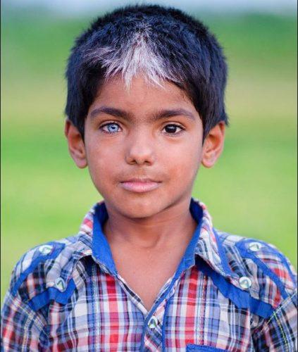 Ребенок с синдромом Ваарденбурга