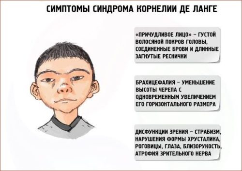 Симптомы синдрома Корнелии де Ланге