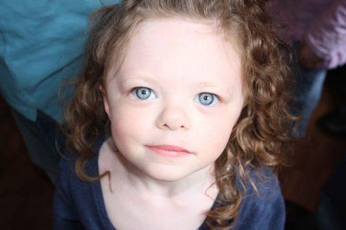 Девочка с синдромом Вильямса