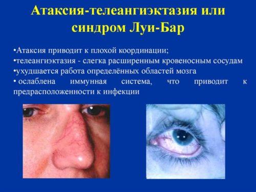 Проявления синдрома Луи Бар